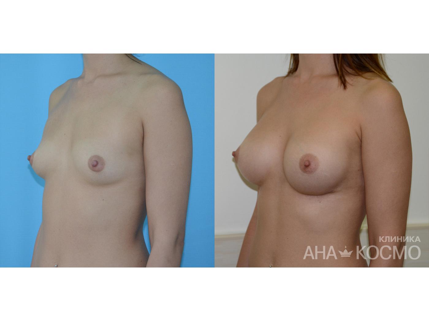 Голые телки с силиконовой грудью