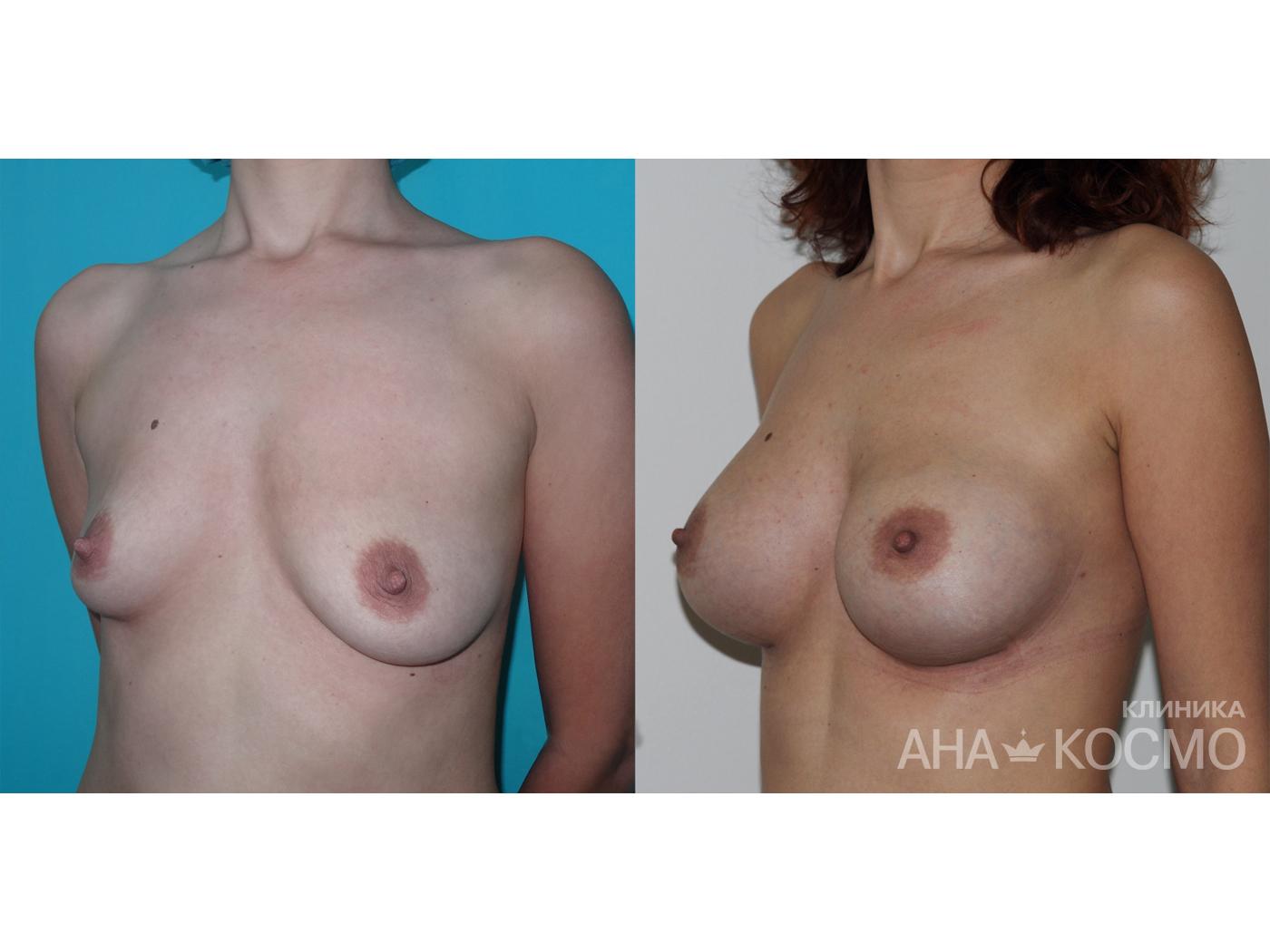 Через сколько менять импланты груди