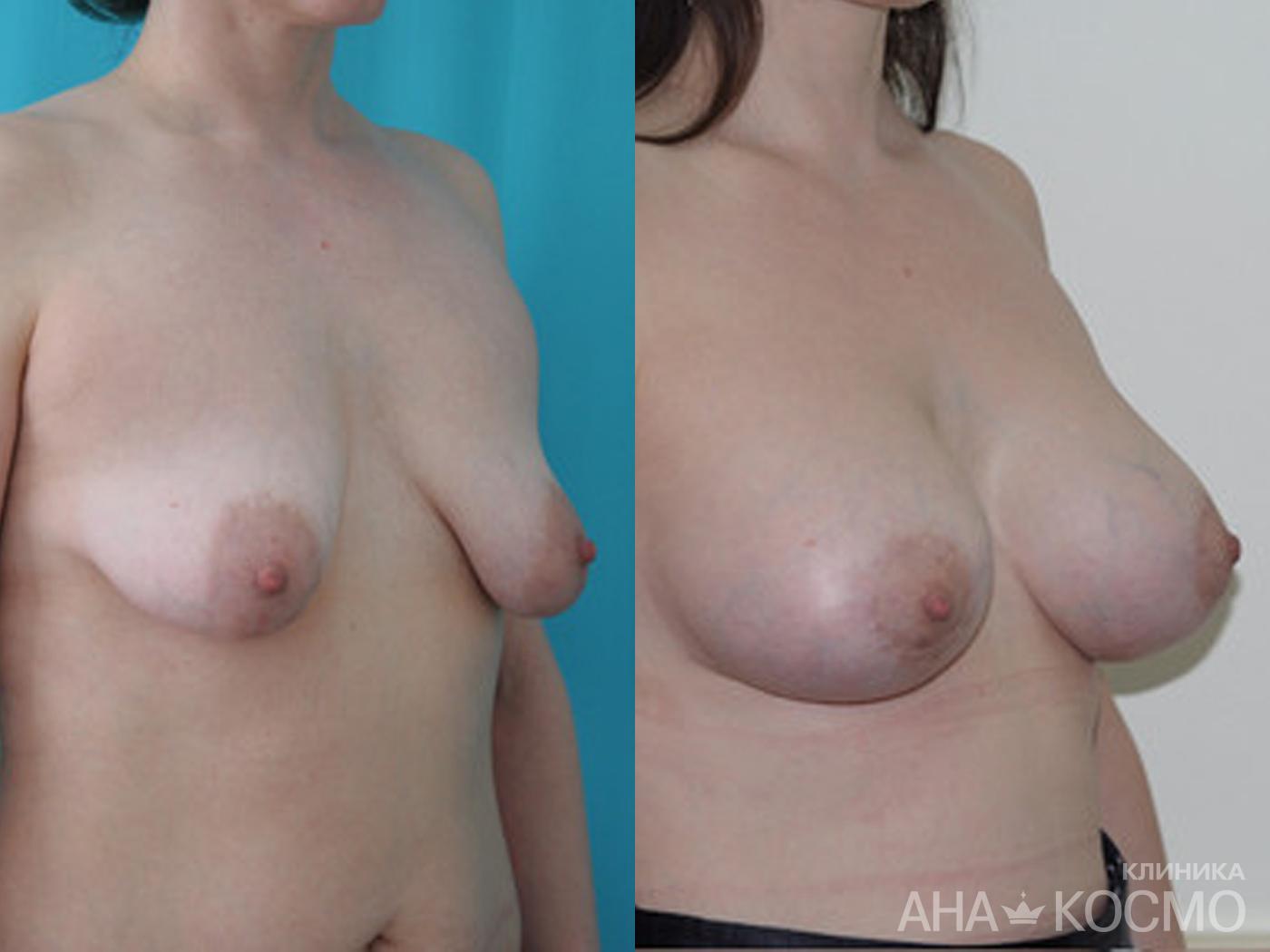 Импланты груди прощупываются