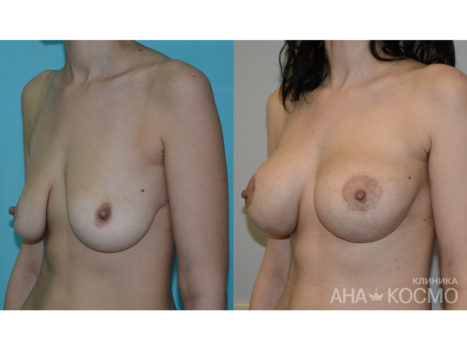 Breast lift, Mastopexy - photo № 5 before and after