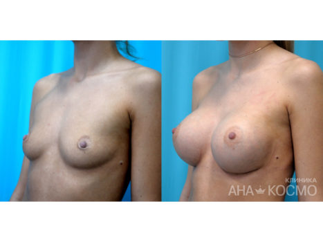 Breast augmentation - photo № 1 before and after