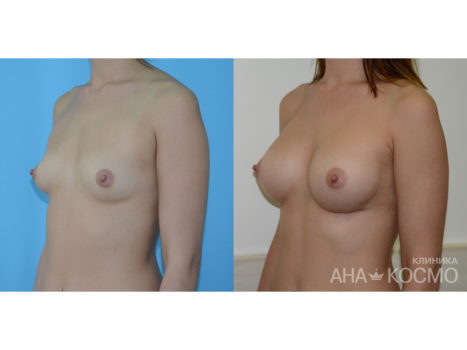 Breast augmentation - photo № 2 before and after