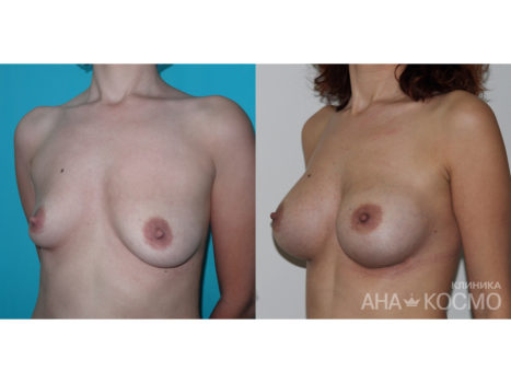 Breast augmentation - photo № 3 before and after