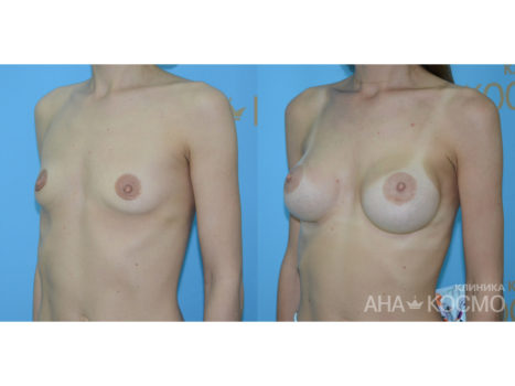 Breast augmentation - photo № 4 before and after