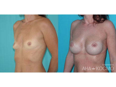 Breast augmentation - photo № 5 before and after