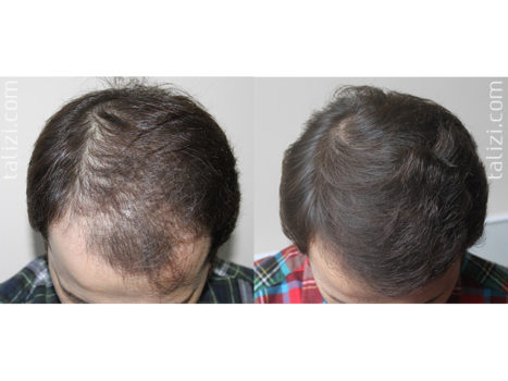 Hair transplantation - photo № 5 before and after