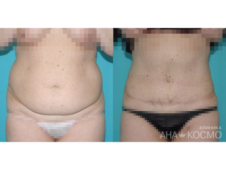 Tummy tuck. Abdominoplasty - photo № 5 before and after