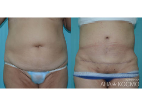 Tummy tuck. Abdominoplasty - photo № 4 before and after