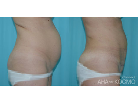 Tummy tuck. Abdominoplasty - photo № 3 before and after