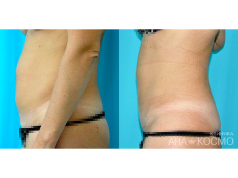 Tummy tuck. Abdominoplasty - photo № 1 before and after