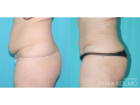 Tummy tuck. Abdominoplasty - photo № 2 before and after