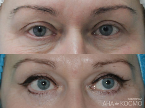 Blepharoplasty - photo № 4 before and after