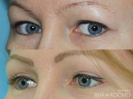 Blepharoplasty - photo № 1 before and after