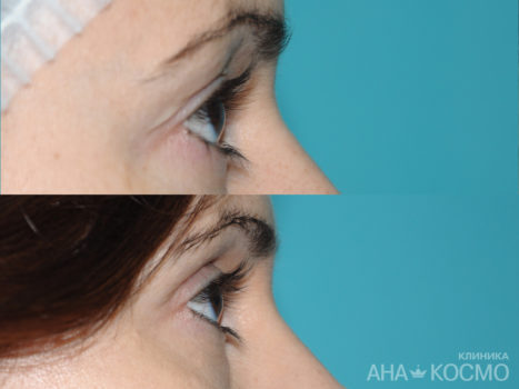 Blepharoplasty - photo № 5 before and after