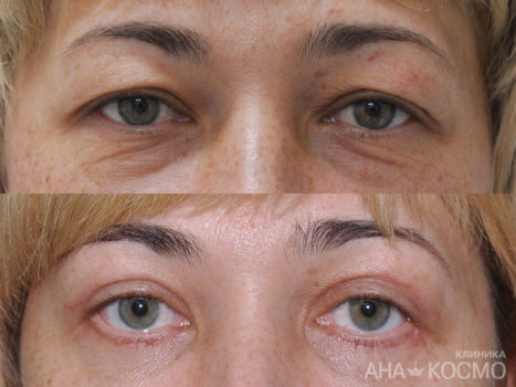 Blepharoplasty - photo № 2 before and after