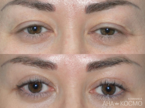 Blepharoplasty - photo № 3 before and after
