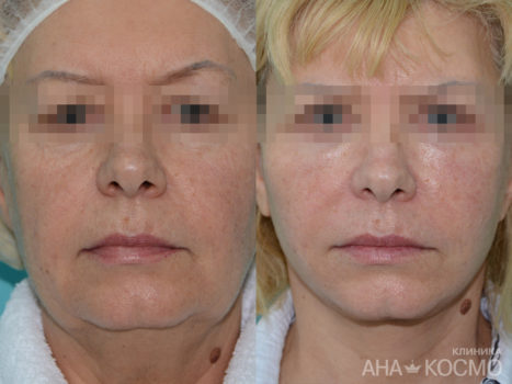 Circular facelifting - photo № 5 before and after