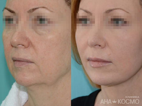 Circular facelifting - photo № 1 before and after