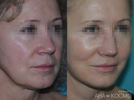 Circular facelifting - photo № 4 before and after