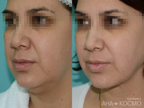Circular facelifting - photo № 3 before and after