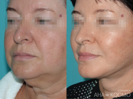 Circular facelifting - photo № 2 before and after