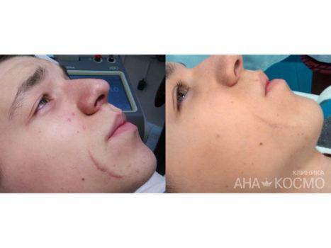 Лазерное омоложение кожи лица киев скульптурный массаж тела отзывы