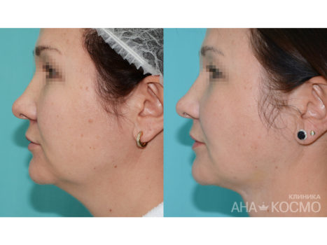 Facelift (thredlifting) - photo № 5 before and after