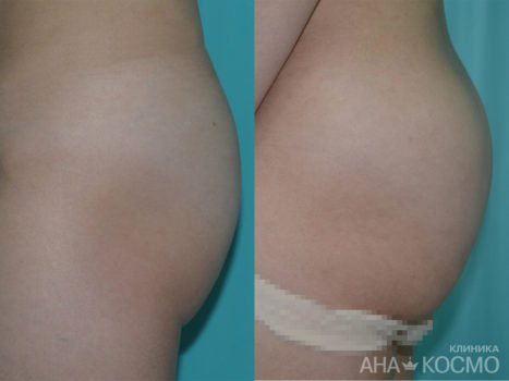 Buttock Augmentation - photo № 2 before and after