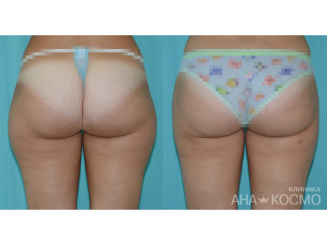 Ultrasonic liposuction - photo № 3 before and after