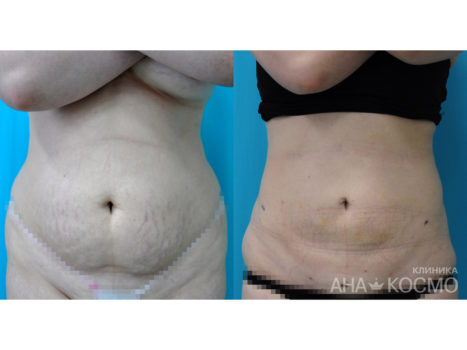 Ultrasonic liposuction - photo № 4 before and after