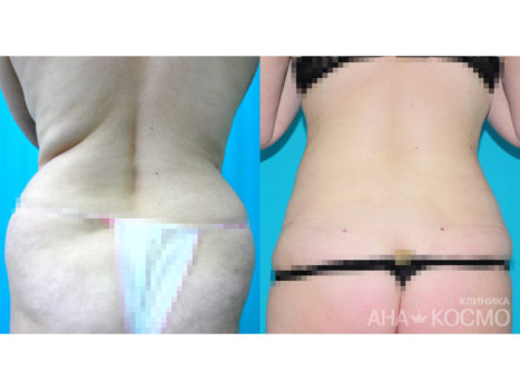 Ultrasonic liposuction - photo № 1 before and after