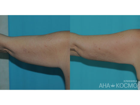 Ultrasonic liposuction - photo № 5 before and after