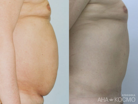 Ultrasonic liposuction - photo № 2 before and after