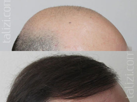 Hair transplantation - photo № 2 before and after
