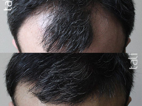 Hair transplantation - photo № 1 before and after