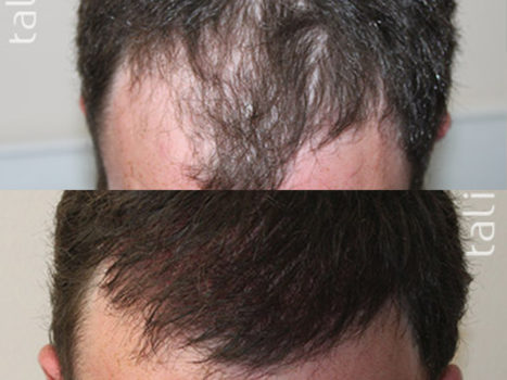 Hair transplantation - photo № 3 before and after