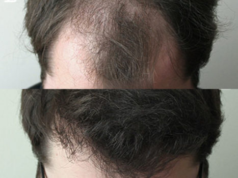 Hair transplantation - photo № 4 before and after