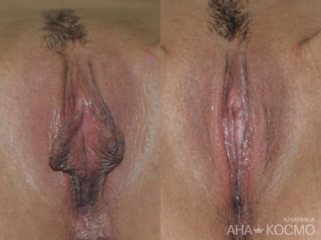 Labiaplasty (labia minora) - photo № 1 before and after