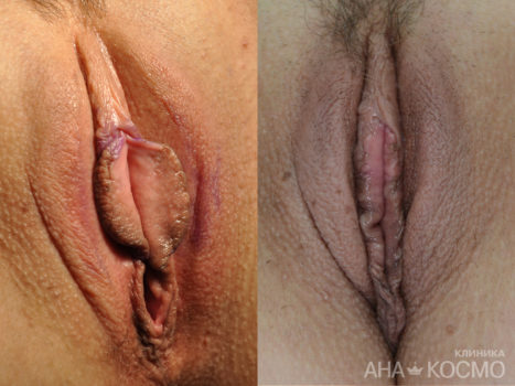 Labiaplasty (labia minora) - photo № 4 before and after