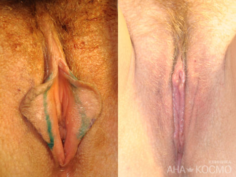 Labiaplasty (labia minora) - photo № 2 before and after