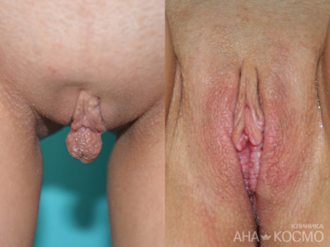 Labiaplasty (labia minora) - photo № 5 before and after