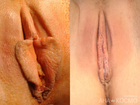 Labiaplasty (labia minora) - photo № 3 before and after