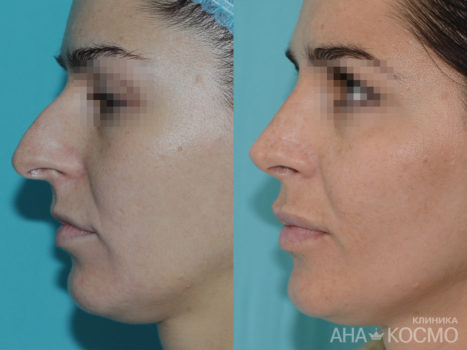 Rhinoplasty - photo № 1 before and after