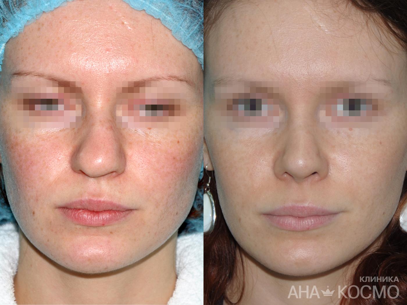 здоровье владикавказ клиника операция на носовой перегородке