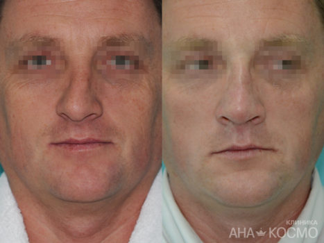 Nose Plastic Surgery - photo № 3 before and after