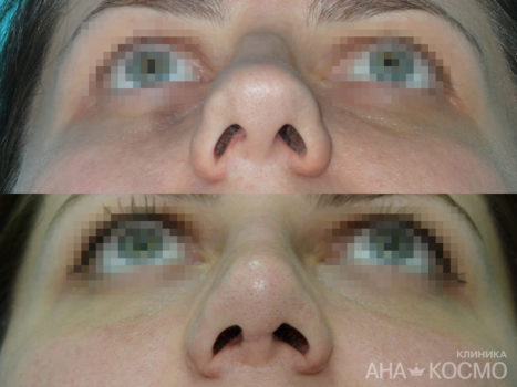 Nose Plastic Surgery - photo № 8 before and after