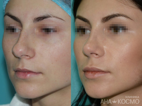 Rhinoplasty - photo № 2 before and after