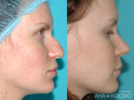 Rhinoplasty - photo № 3 before and after