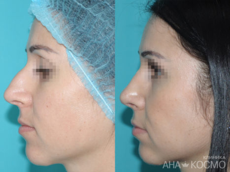 Rhinoplasty - photo № 4 before and after