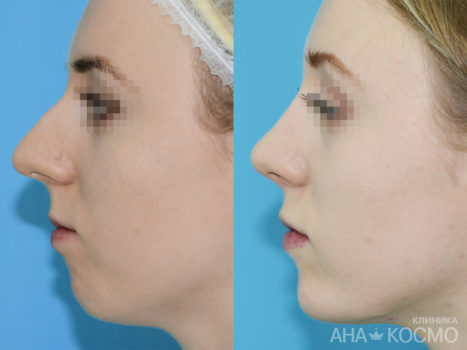 Rhinoplasty - photo № 5 before and after
